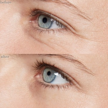 eye-before-and-after-15